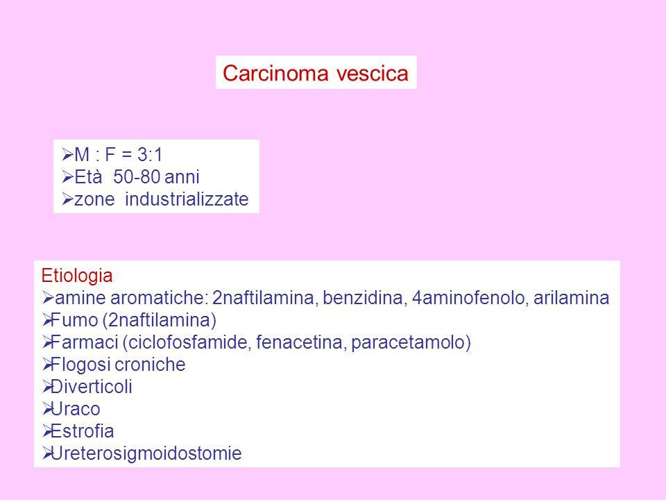 Carcinoma vescica  M : F = 3:1  Età 50-80 anni  zone industrializzate Etiologia  amine aromatiche: 2naftilamina, benzidina, 4aminofenolo, arilamina  Fumo (2naftilamina)  Farmaci (ciclofosfamide, fenacetina, paracetamolo)  Flogosi croniche  Diverticoli  Uraco  Estrofia  Ureterosigmoidostomie