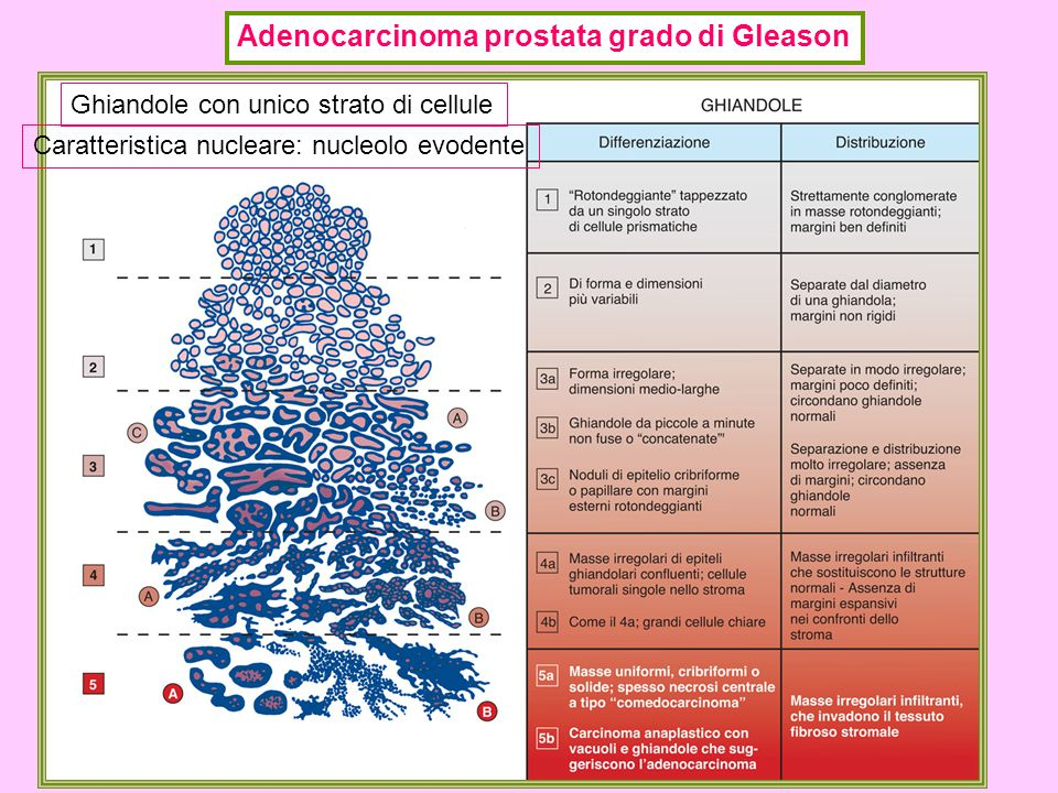 Adenocarcinoma prostata grado di Gleason Ghiandole con unico strato di cellule Caratteristica nucleare: nucleolo evodente