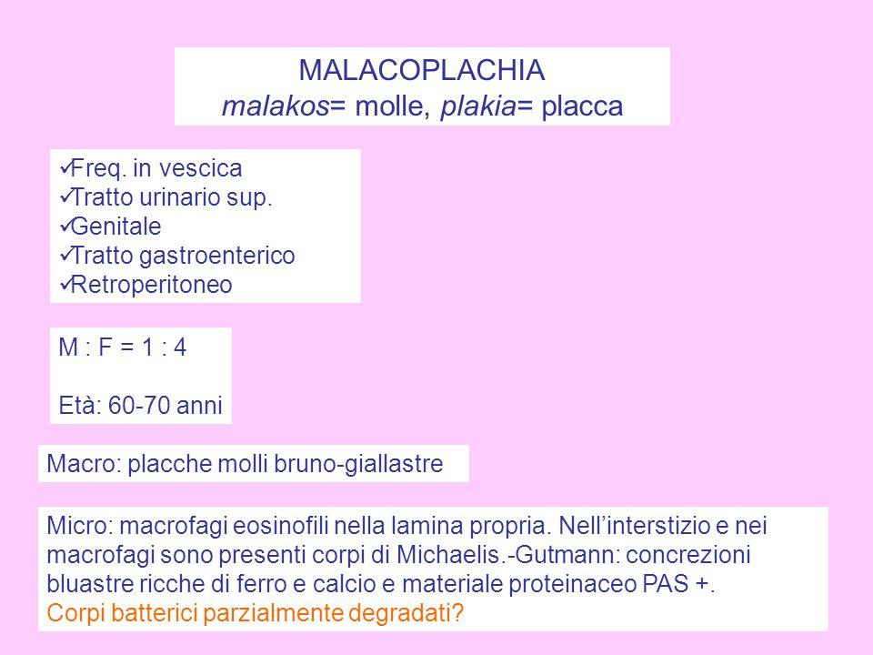 MALACOPLACHIA malakos= molle, plakia= placca Freq. in vescica Tratto urinario sup. Genitale Tratto gastroenterico Retroperitoneo M : F = 1 : 4 Età: 60
