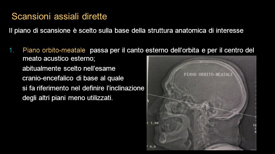Scansioni assiali dirette Il piano di scansione è scelto sulla base della struttura anatomica di interesse 1. Piano orbito-meatale passa per il canto