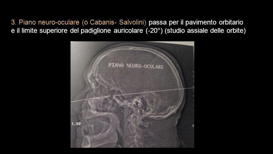 3. Piano neuro-oculare (o Cabanis- Salvolini) passa per il pavimento orbitario e il limite superiore del padiglione auricolare (-20°) (studio assiale