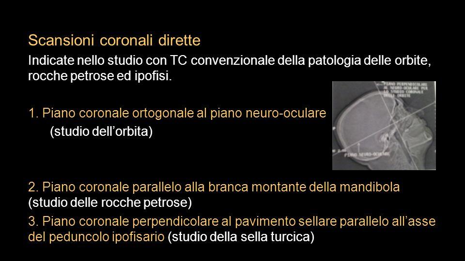 Scansioni coronali dirette Indicate nello studio con TC convenzionale della patologia delle orbite, rocche petrose ed ipofisi. 1. Piano coronale ortog