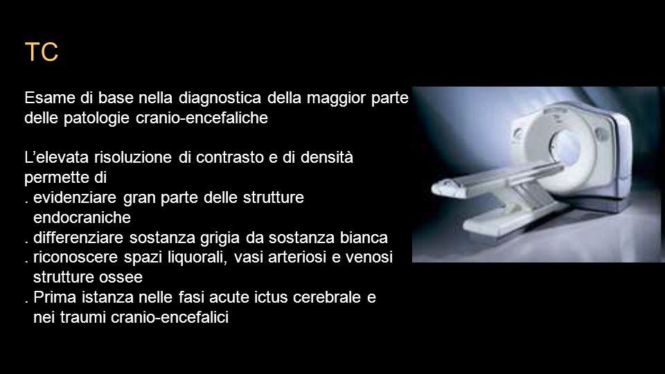TC Esame di base nella diagnostica della maggior parte delle patologie cranio-encefaliche L'elevata risoluzione di contrasto e di densità permette di.