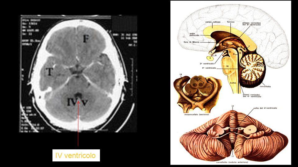 IV ventricolo