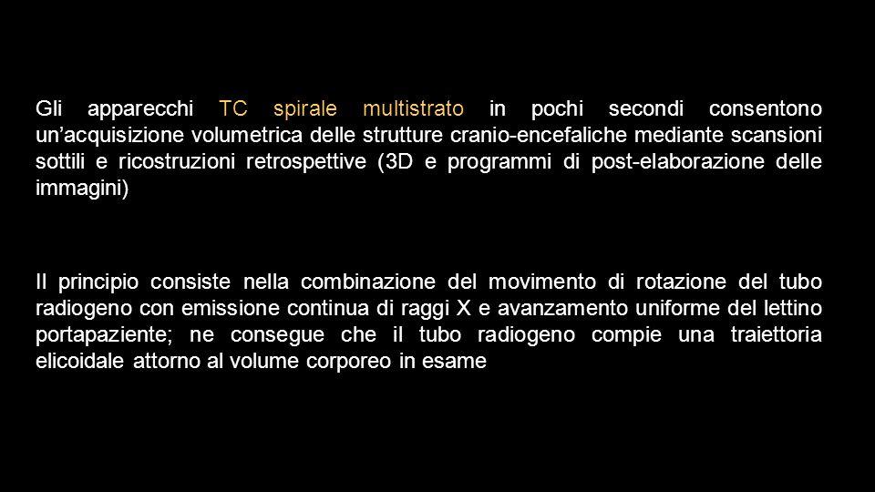Gli apparecchi TC spirale multistrato in pochi secondi consentono un'acquisizione volumetrica delle strutture cranio-encefaliche mediante scansioni so