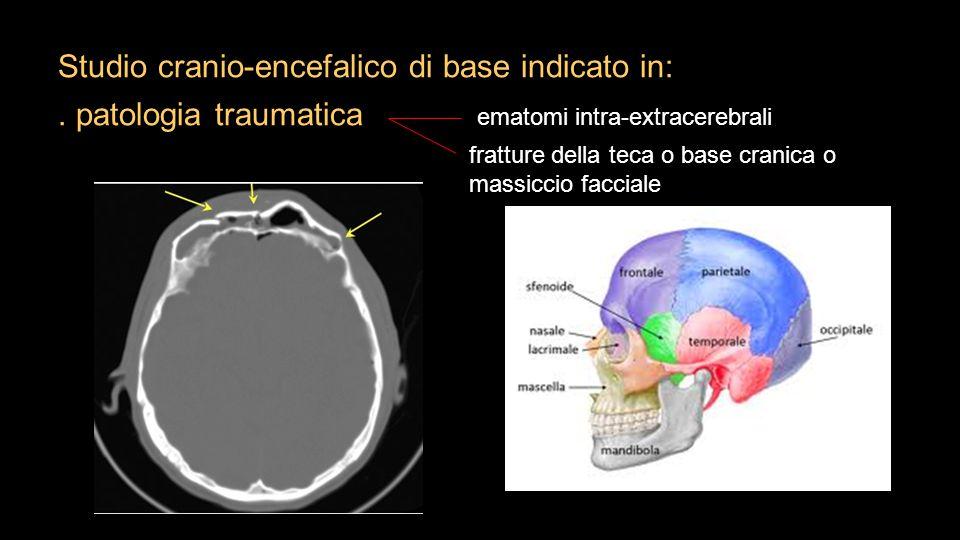 Studio cranio-encefalico di base indicato in:. patologia traumatica ematomi intra-extracerebrali fratture della teca o base cranica o massiccio faccia