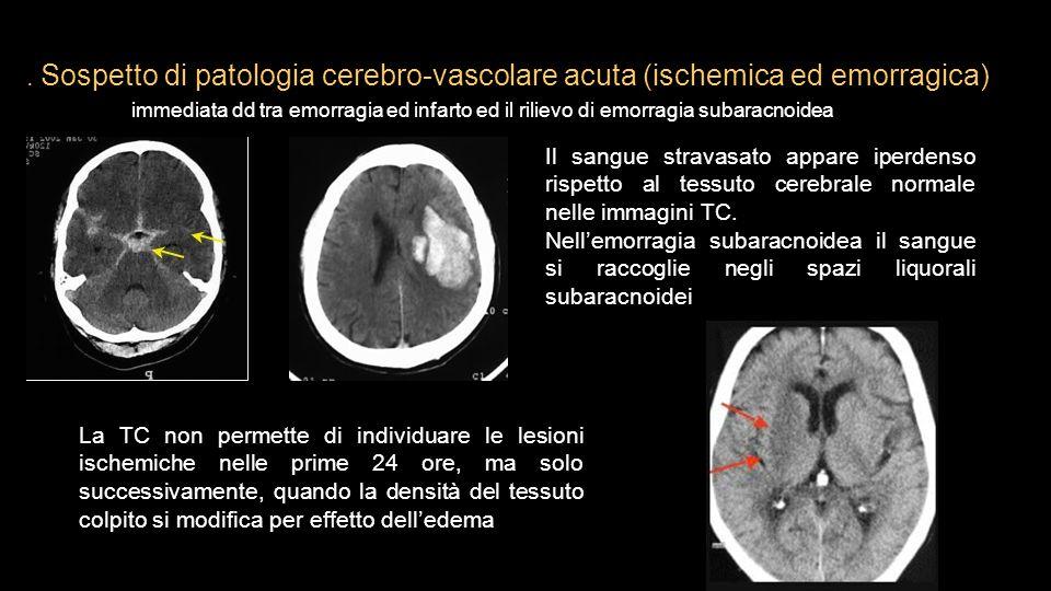 . Sospetto di patologia cerebro-vascolare acuta (ischemica ed emorragica) immediata dd tra emorragia ed infarto ed il rilievo di emorragia subaracnoid
