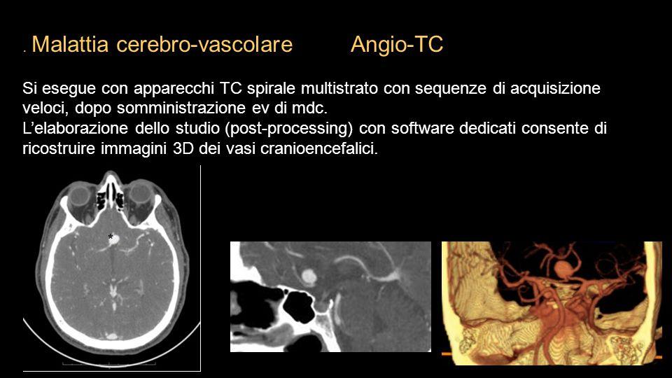 . Malattia cerebro-vascolare Angio-TC Si esegue con apparecchi TC spirale multistrato con sequenze di acquisizione veloci, dopo somministrazione ev di
