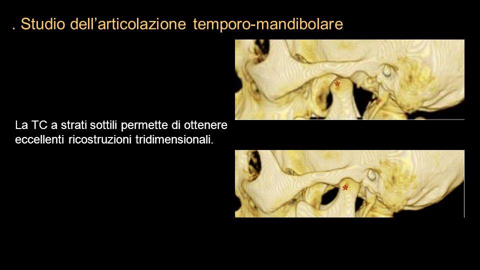 La TC a strati sottili permette di ottenere eccellenti ricostruzioni tridimensionali.. Studio dell'articolazione temporo-mandibolare