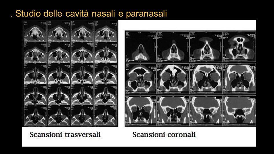 . Studio delle cavità nasali e paranasali