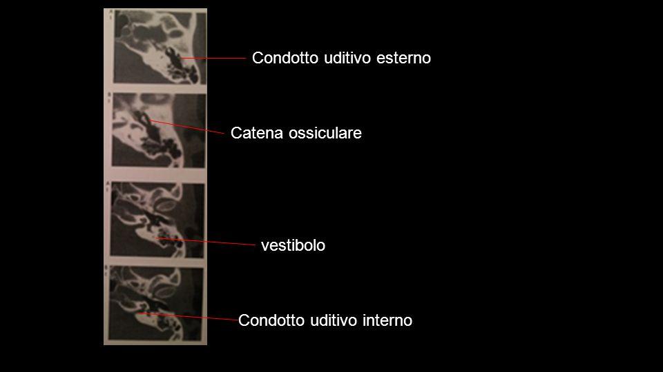 Condotto uditivo esterno Catena ossiculare Condotto uditivo interno vestibolo