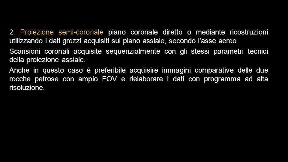 2. Proiezione semi-coronale piano coronale diretto o mediante ricostruzioni utilizzando i dati grezzi acquisiti sul piano assiale, secondo l'asse aere