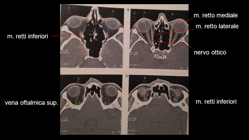 m. retti inferiori vena oftalmica sup. m. retto laterale m. retti inferiori nervo ottico m. retto mediale
