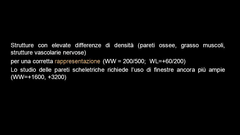 Strutture con elevate differenze di densità (pareti ossee, grasso muscoli, strutture vascolarie nervose) per una corretta rappresentazione (WW = 200/5