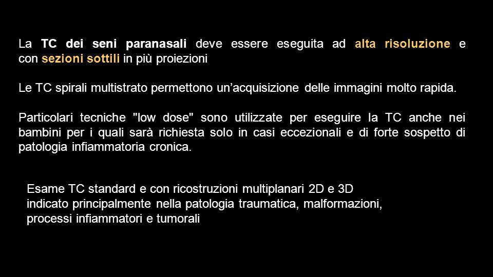 La TC dei seni paranasali deve essere eseguita ad alta risoluzione e con sezioni sottili in più proiezioni Le TC spirali multistrato permettono un'acq