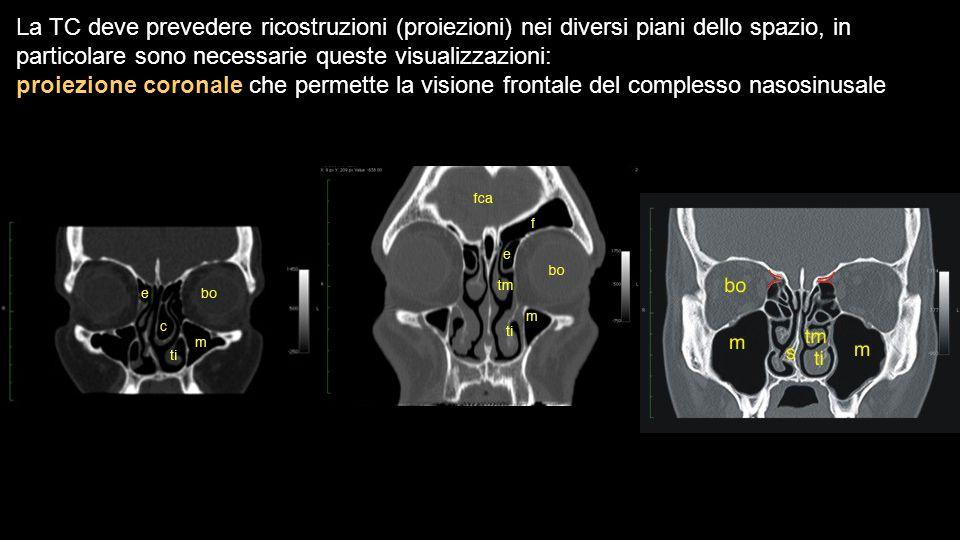 La TC deve prevedere ricostruzioni (proiezioni) nei diversi piani dello spazio, in particolare sono necessarie queste visualizzazioni: proiezione coro