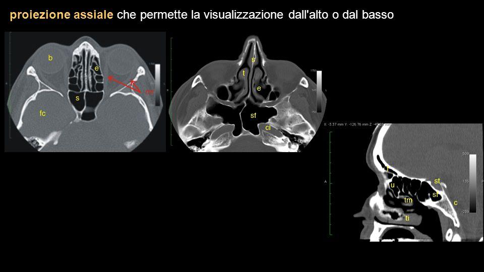 proiezione assiale che permette la visualizzazione dall'alto o dal basso