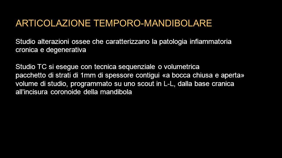 ARTICOLAZIONE TEMPORO-MANDIBOLARE Studio alterazioni ossee che caratterizzano la patologia infiammatoria cronica e degenerativa Studio TC si esegue co