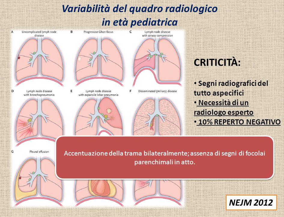 Variabilità del quadro radiologico in età pediatrica NEJM 2012 CRITICITÀ: Segni radiografici del tutto aspecifici Necessità di un radiologo esperto 10