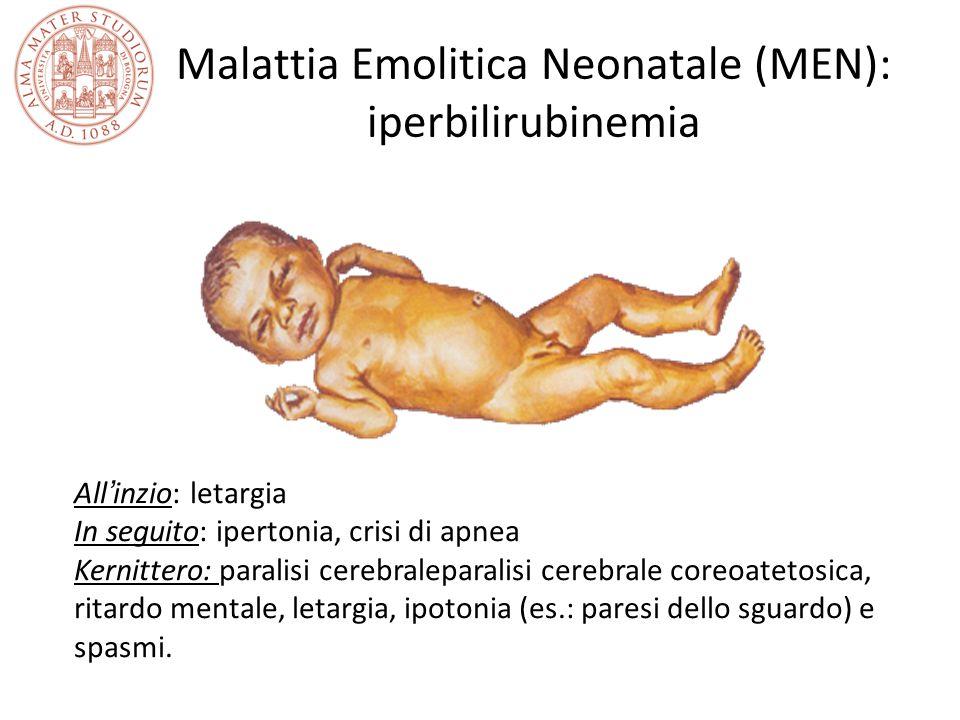 Malattia Emolitica Neonatale (MEN): iperbilirubinemia All'inzio: letargia In seguito: ipertonia, crisi di apnea Kernittero: paralisi cerebraleparalisi