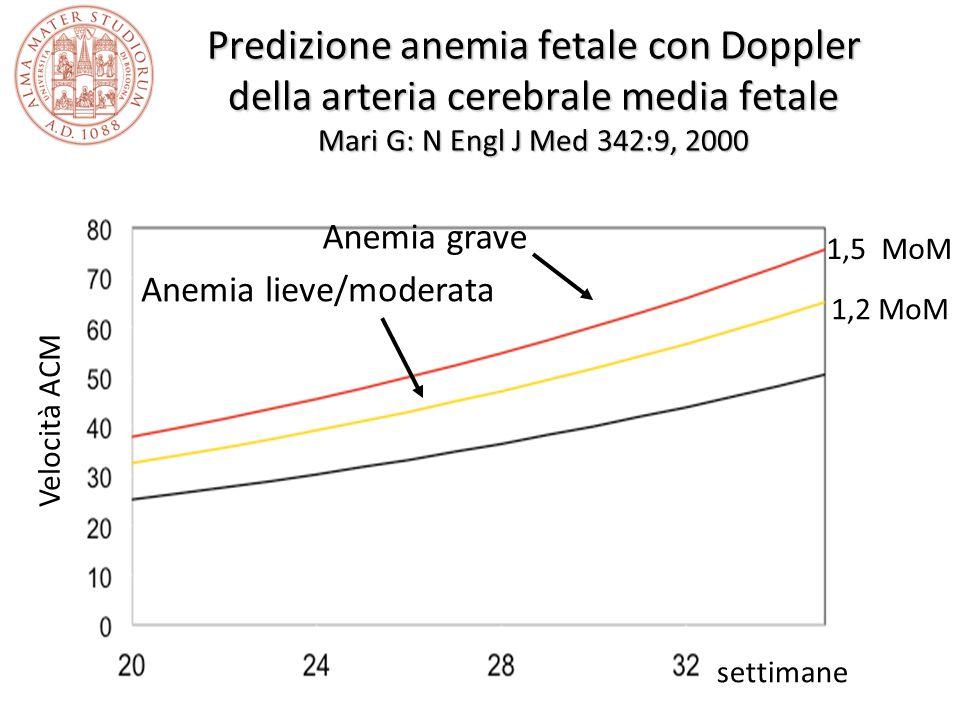 Predizione anemia fetale con Doppler della arteria cerebrale media fetale Mari G: N Engl J Med 342:9, 2000 Anemia lieve/moderata Anemia grave 1,5 MoM 1,2 MoM settimane Velocità ACM
