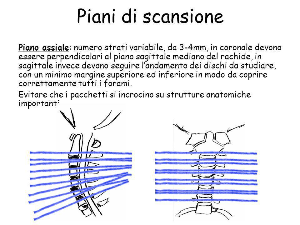 Piani di scansione Piano assiale: numero strati variabile, da 3-4mm, in coronale devono essere perpendicolari al piano sagittale mediano del rachide,