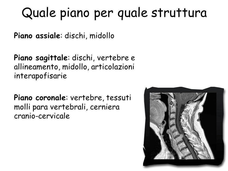 Quale piano per quale struttura Piano assiale: dischi, midollo Piano sagittale: dischi, vertebre e allineamento, midollo, articolazioni interapofisari