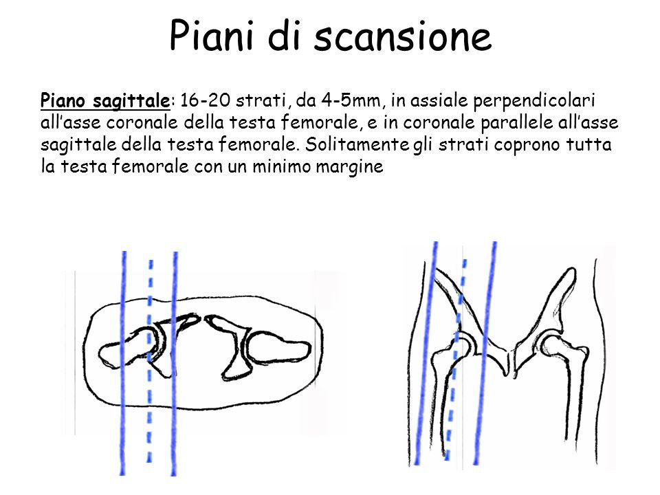 Piani di scansione Piano sagittale: 16-20 strati, da 4-5mm, in assiale perpendicolari all'asse coronale della testa femorale, e in coronale parallele