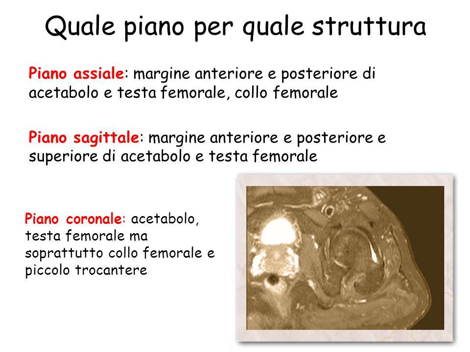 Quale piano per quale struttura Piano assiale: margine anteriore e posteriore di acetabolo e testa femorale, collo femorale Piano sagittale: margine a