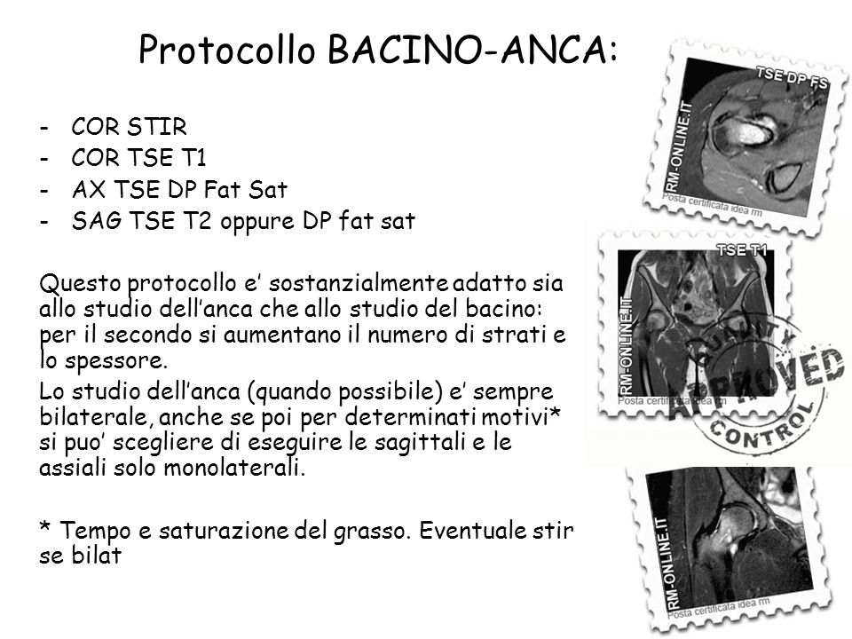 Protocollo BACINO-ANCA: -COR STIR -COR TSE T1 -AX TSE DP Fat Sat -SAG TSE T2 oppure DP fat sat Questo protocollo e' sostanzialmente adatto sia allo st