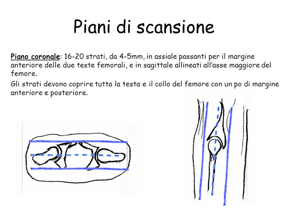 Piani di scansione Piano coronale: 16-20 strati, da 4-5mm, in assiale passanti per il margine anteriore delle due teste femorali, e in sagittale allin