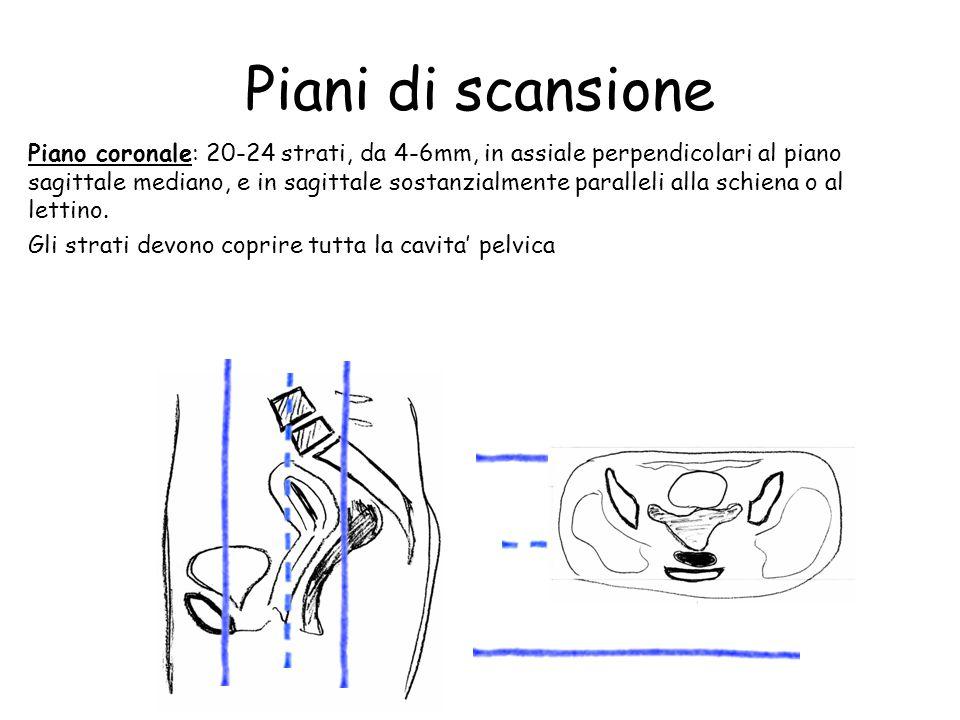 Piani di scansione Piano coronale: 20-24 strati, da 4-6mm, in assiale perpendicolari al piano sagittale mediano, e in sagittale sostanzialmente parall