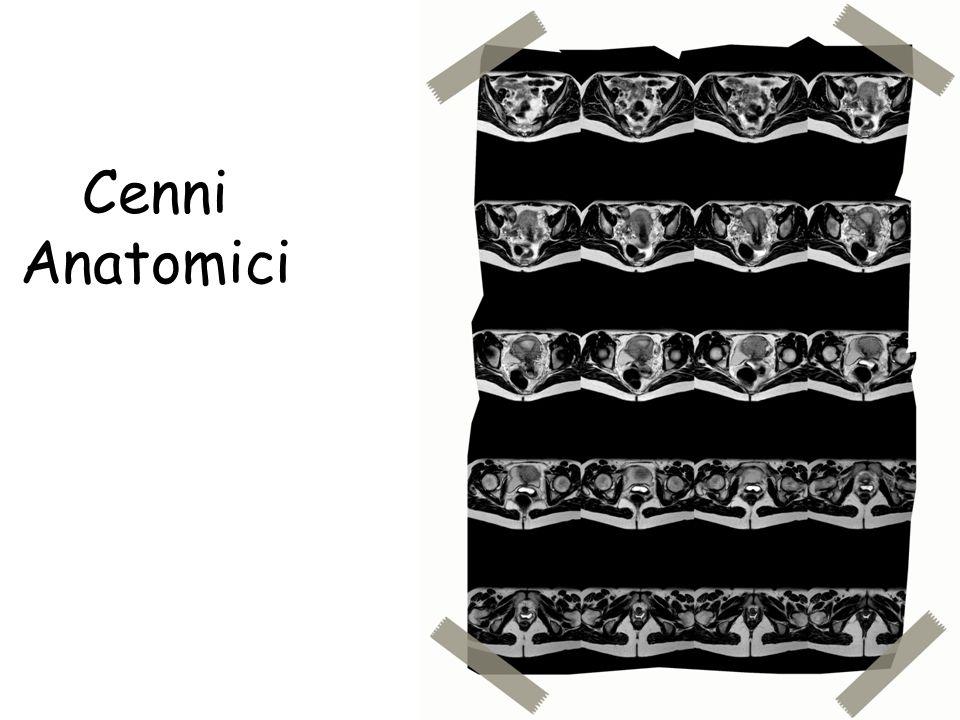 Quale piano per quale struttura Piano assiale: ovaie, vagina, vescica Piano sagittale: utero, vagina, vescica Piano coronale: ovaie, utero, vescica