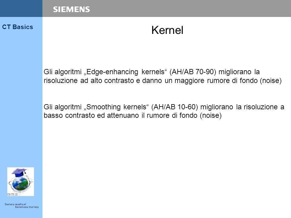 """CS TC 22 CT Basics Gli algoritmi """"Edge-enhancing kernels"""" (AH/AB 70-90) migliorano la risoluzione ad alto contrasto e danno un maggiore rumore di fond"""