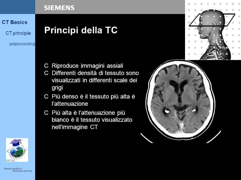 6 CT Basics CT principle preprocessing CS TC 22 Principi della TC CRiproduce immagini assiali CDifferenti densità di tessuto sono visualizzati in diff