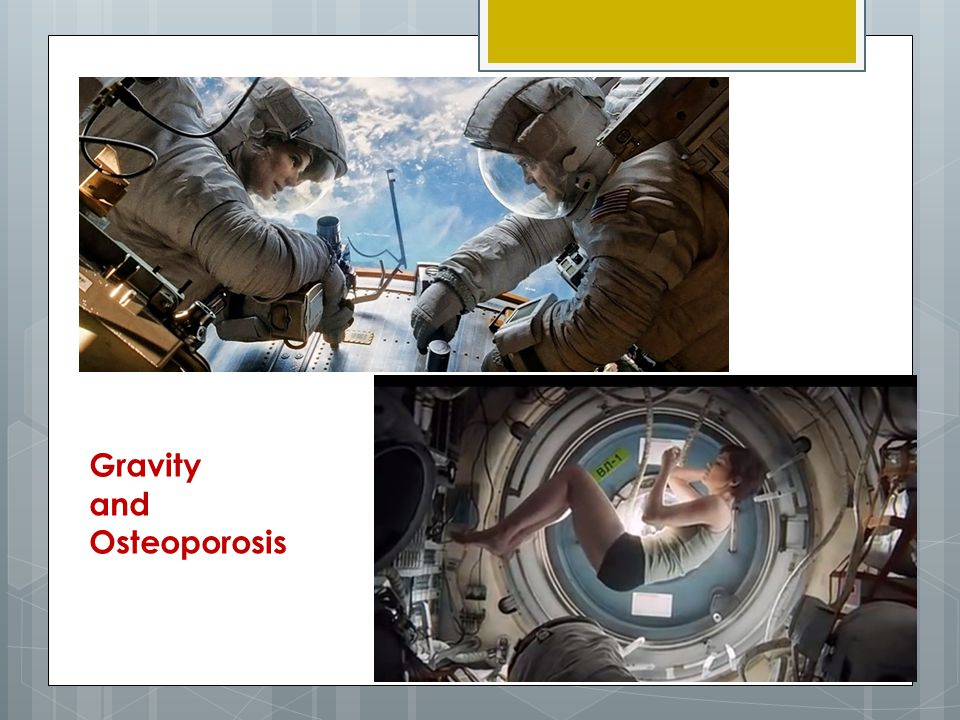 Gravity and Osteoporosis