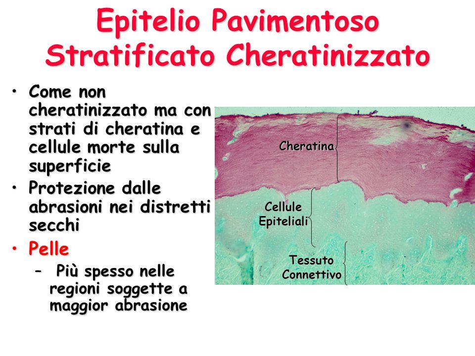 Epitelio Pavimentoso Stratificato Cheratinizzato Come non cheratinizzato ma con strati di cheratina e cellule morte sulla superficieCome non cheratini