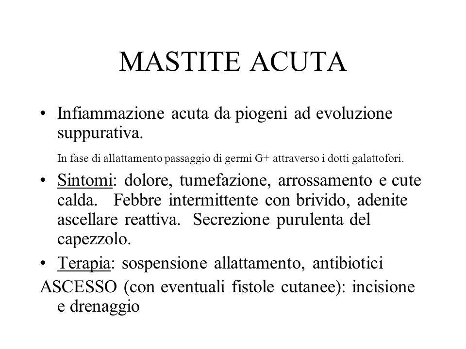 MASTOPATIA FIBROCISTICA Displasia frequente (20%) della mammella, focale o bilaterale.