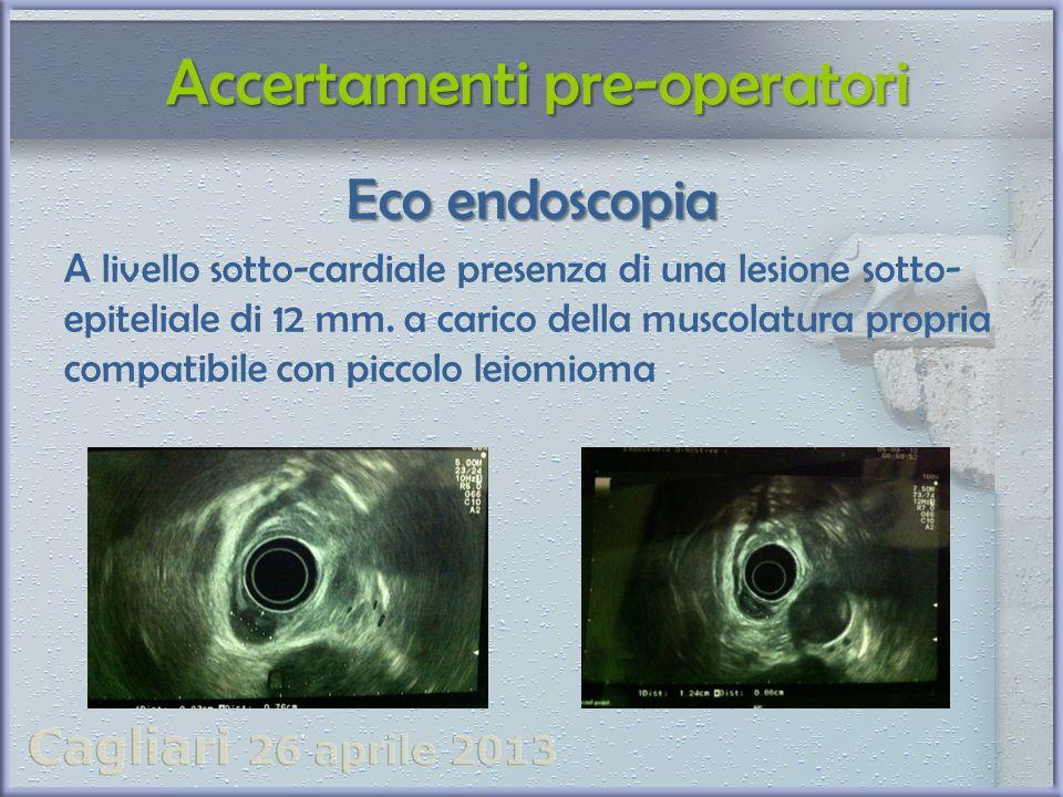 Eco endoscopia A livello sotto-cardiale presenza di una lesione sotto- epiteliale di 12 mm. a carico della muscolatura propria compatibile con piccolo