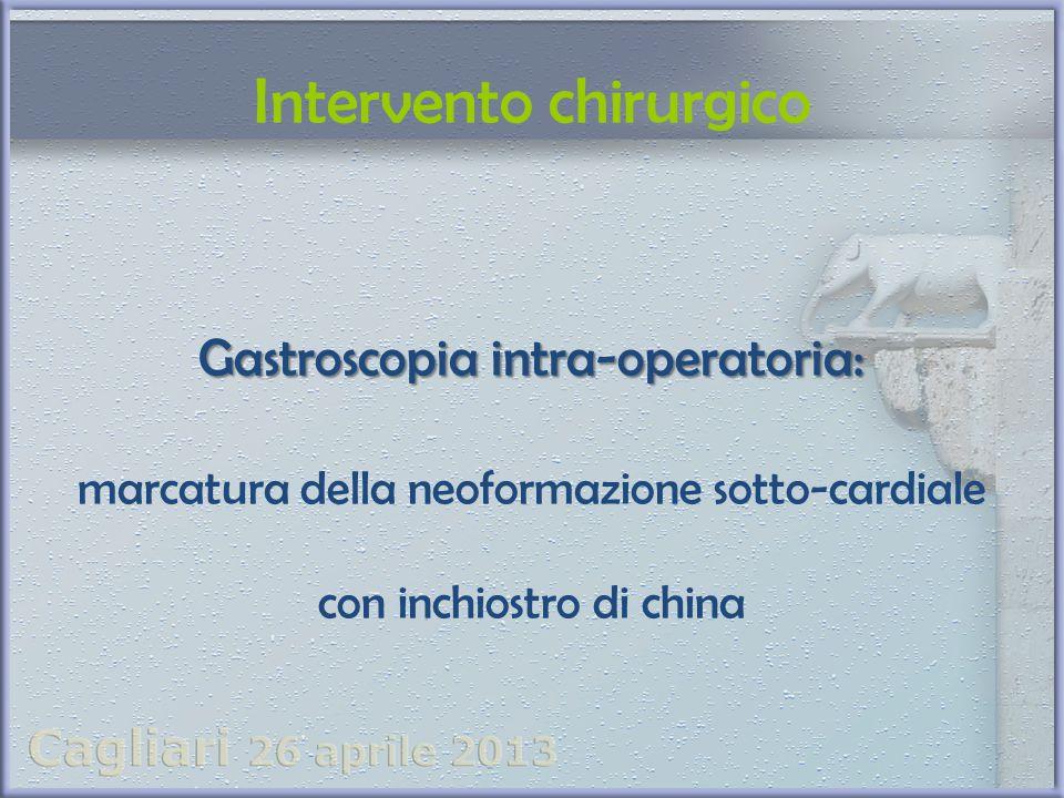Intervento chirurgico Gastroscopia intra-operatoria: marcatura della neoformazione sotto-cardiale con inchiostro di china