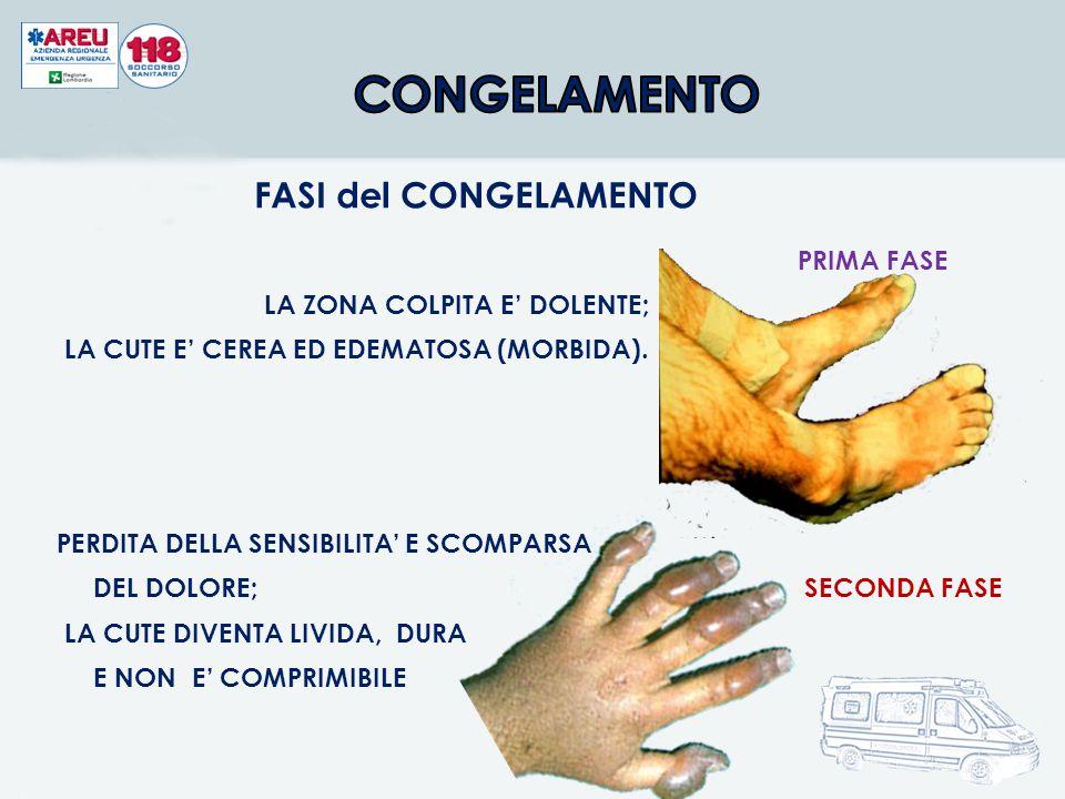 PRIMA FASE LA ZONA COLPITA E' DOLENTE; LA CUTE E' CEREA ED EDEMATOSA (MORBIDA).