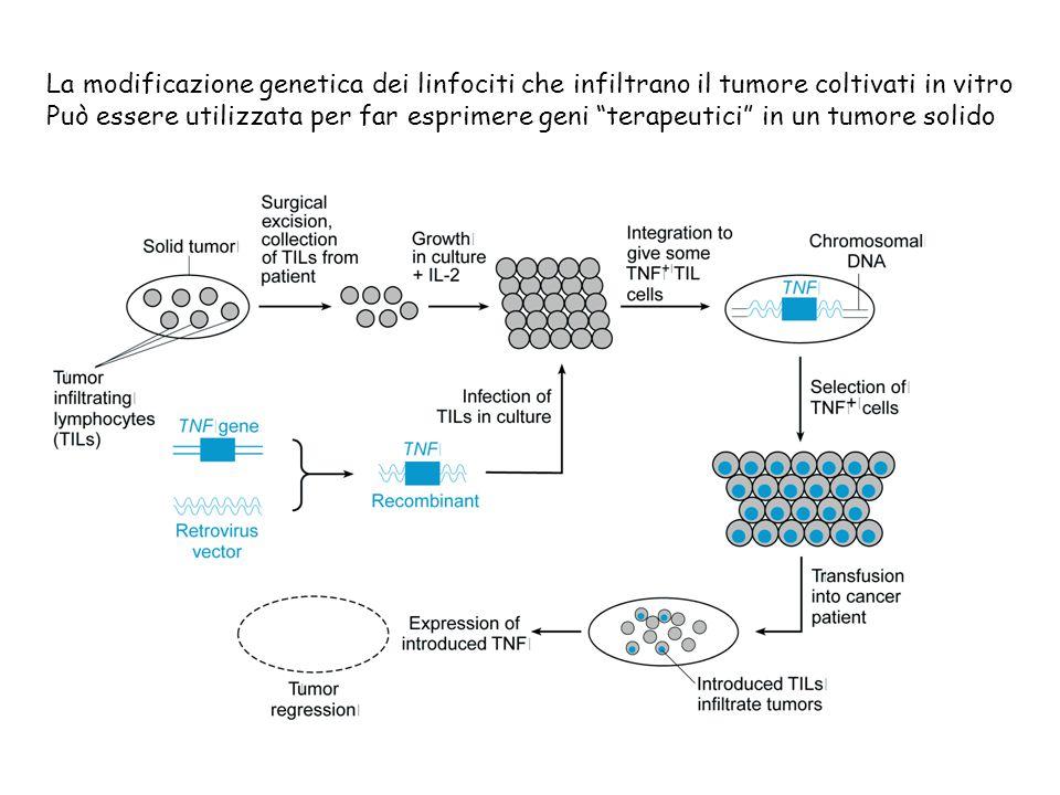"""La modificazione genetica dei linfociti che infiltrano il tumore coltivati in vitro Può essere utilizzata per far esprimere geni """"terapeutici"""" in un t"""