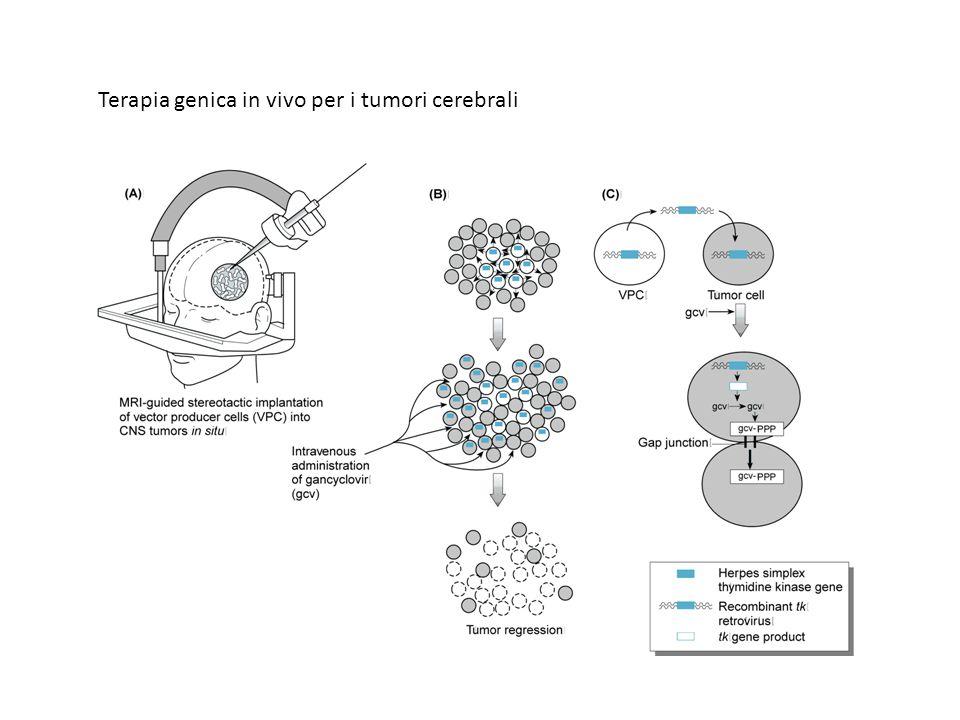 Terapia genica in vivo per i tumori cerebrali