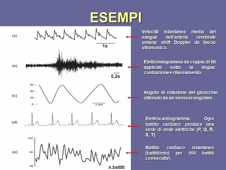 ESEMPI Velocità istantanea media del sangue nell'arteria cerebrale umana: shift Doppler da fascio ultrasonico. 1s Elettromiogramma da coppia di fili a