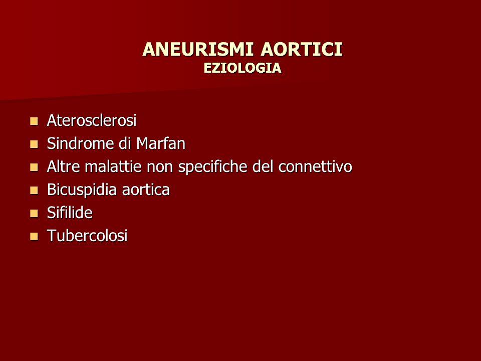 ANEURISMI AORTICI EZIOLOGIA Aterosclerosi Aterosclerosi Sindrome di Marfan Sindrome di Marfan Altre malattie non specifiche del connettivo Altre malat