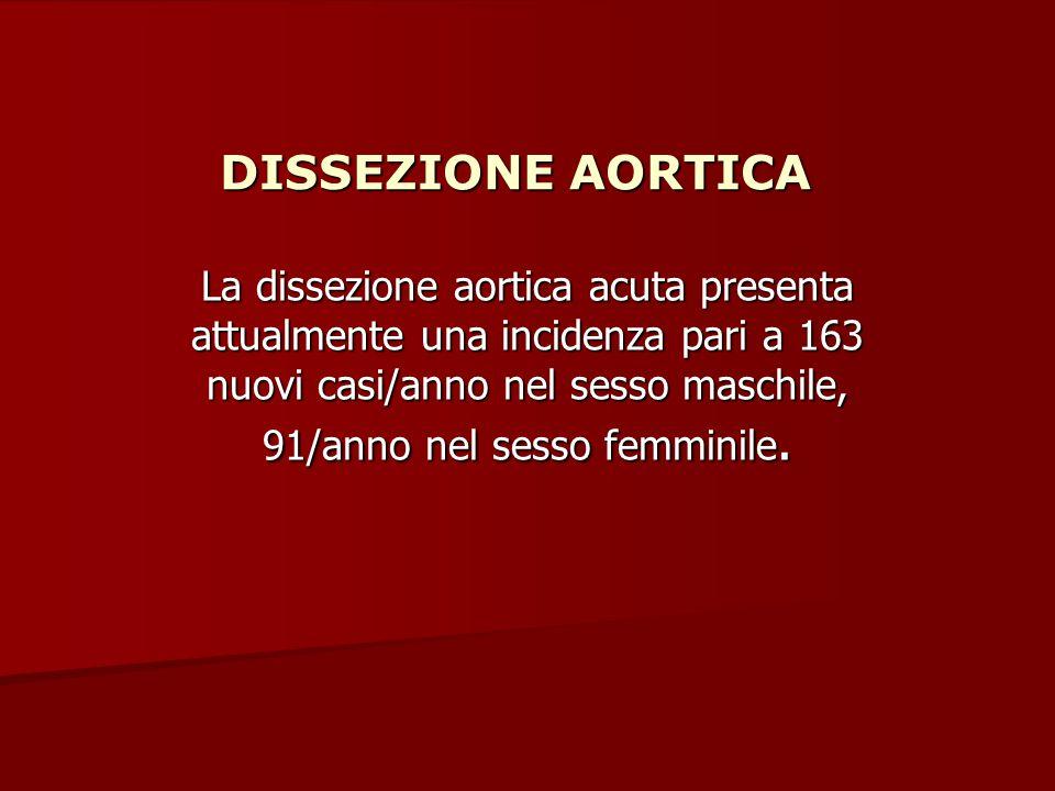 DISSEZIONE AORTICA La dissezione aortica acuta presenta attualmente una incidenza pari a 163 nuovi casi/anno nel sesso maschile, 91/anno nel sesso fem