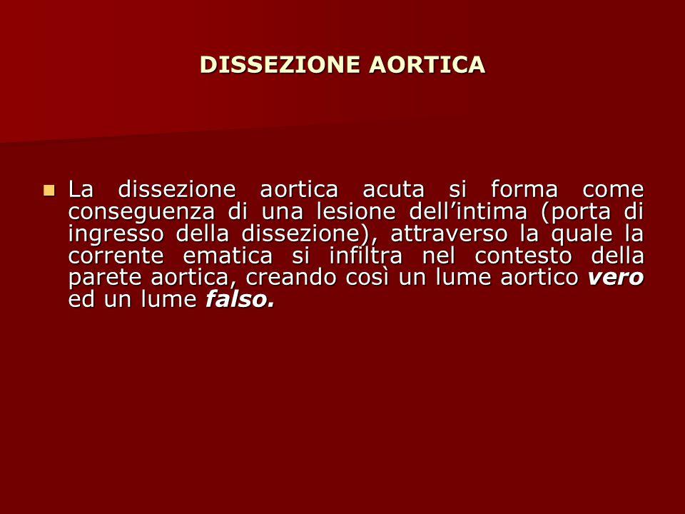 DISSEZIONE AORTICA La dissezione aortica acuta si forma come conseguenza di una lesione dell'intima (porta di ingresso della dissezione), attraverso l