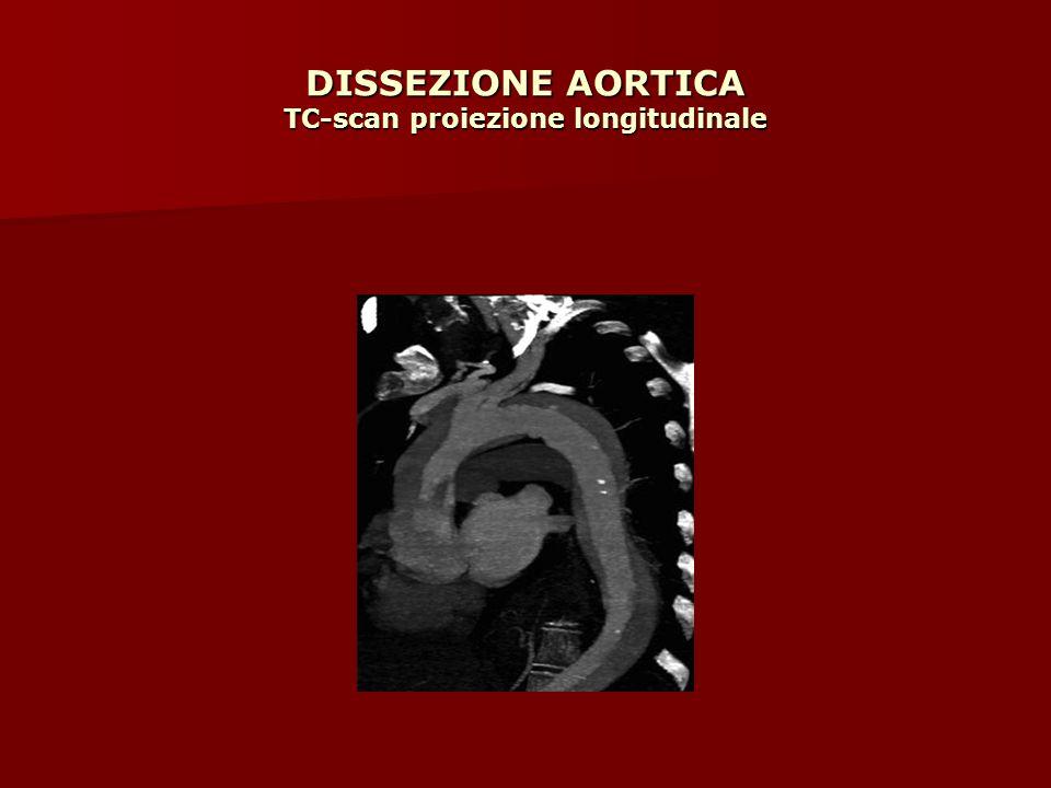 DISSEZIONE AORTICA TC-scan proiezione longitudinale