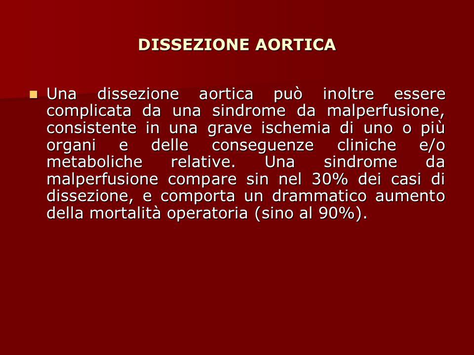 DISSEZIONE AORTICA Una dissezione aortica può inoltre essere complicata da una sindrome da malperfusione, consistente in una grave ischemia di uno o p