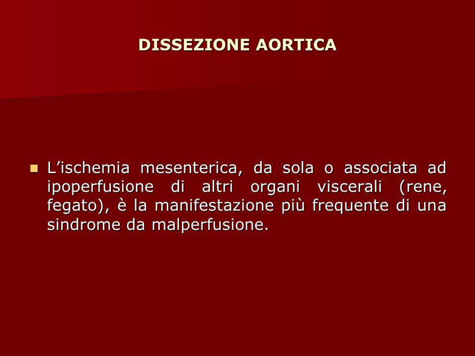 DISSEZIONE AORTICA L'ischemia mesenterica, da sola o associata ad ipoperfusione di altri organi viscerali (rene, fegato), è la manifestazione più freq